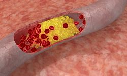 Какво е холестерол? Как да регулираме холестерола?