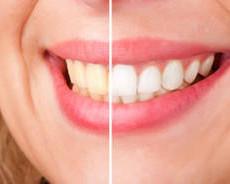 Бели зъби в домашни условия