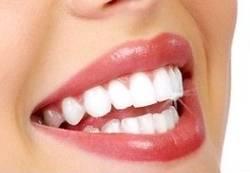 Бели зъби - как да избелим зъбите си ?