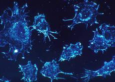 Рак на шийката на матката