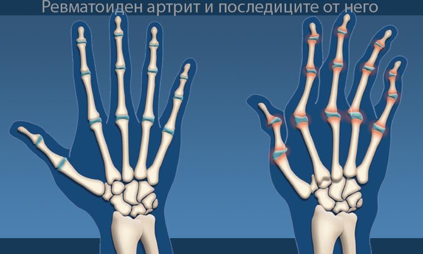 Какви са пораженията от артрита ?